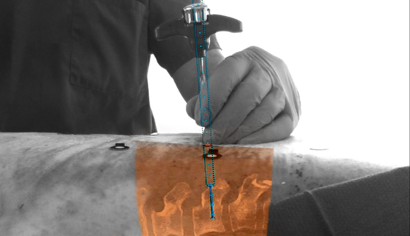 Philips-Surgical-Navigation-Technology-based-on-Augmented-Reality-1